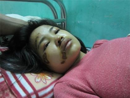 """Nghi án CSGT """"ra gậy"""", thai phụ nguy kịch nhập viện"""