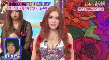 Nữ sinh Nhật thành búp bê Pháp sau 30 ca phẫu thuật