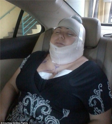 Một phụ nữ chết vì phẫu thuật thẩm mỹ liên hoàn 2