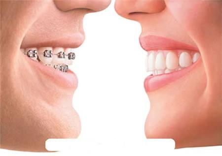 Niềng răng: lợi nhiều, hại cũng không ít 1