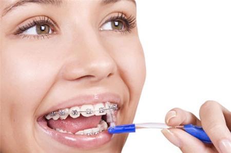 Niềng răng: lợi nhiều, hại cũng không ít 2
