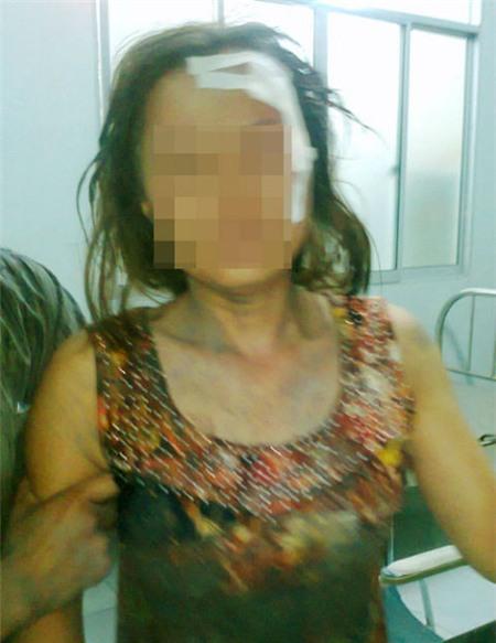 Chị Mụi bị đánh gây thương tích ở đầu, trán đang còn điều trị tại bệnh viện.
