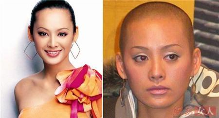 Ninh Tịnh có những nét đẹp mê hoặc, khiến nhiều người chẳng còn chú ý tới việc cô có hay không có tóc.