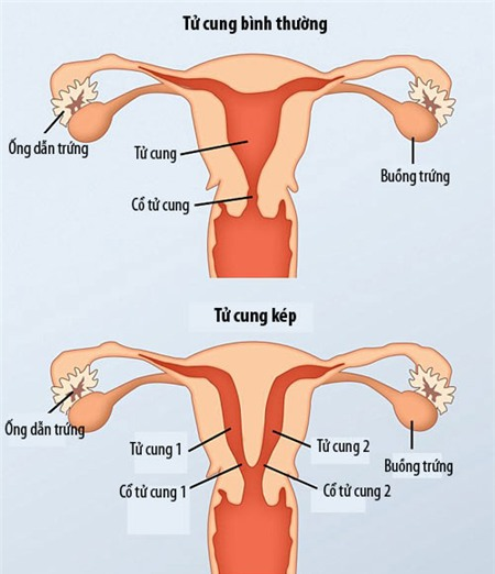 Mẹ 2 âm đạo, 2 tử cung sinh con kỳ diệu - 4