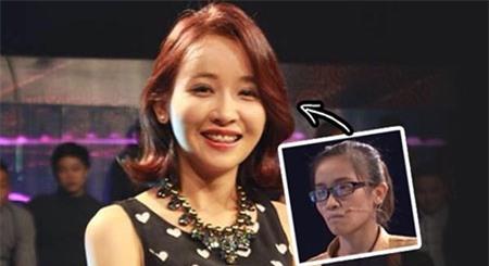 Màn lột xác ngoạn mục của cô gái Nghệ An có vết sẹo lớn trên mặt