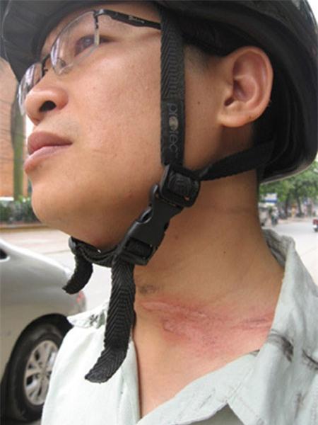 Sống ở Hà Nội, cần phải biết những nguy hiểm chết người này! - Ảnh 19
