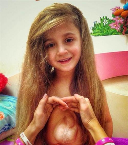 Kinh ngạc bé 5 tuổi có trái tim ngoài lồng ngực - 2