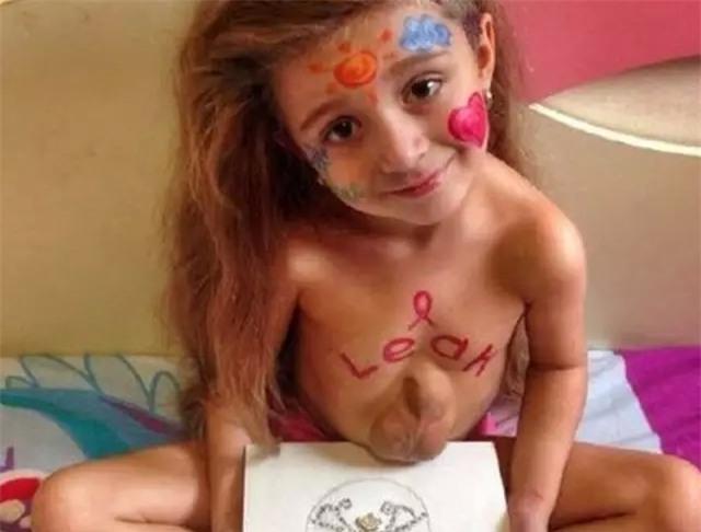 Kinh ngạc bé 5 tuổi có trái tim ngoài lồng ngực - 4