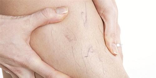 Phù chân ở những người mang thai nguy cơ giãn tĩnh mạch
