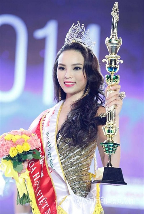 Bằng chứng Hoa hậu Kỳ Duyên tiêm botox v-line 0