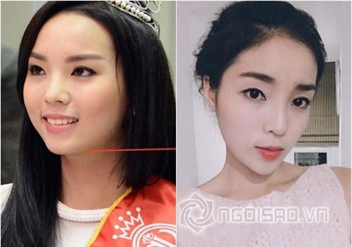Bằng chứng Hoa hậu Kỳ Duyên tiêm botox v-line 1