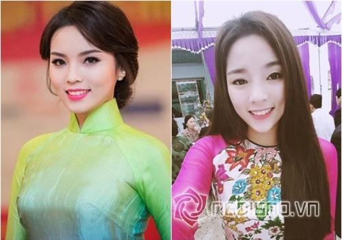 Bằng chứng Hoa hậu Kỳ Duyên tiêm botox v-line 2