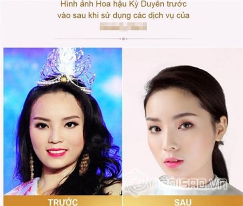 Bằng chứng Hoa hậu Kỳ Duyên tiêm botox v-line 4