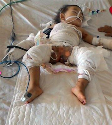 Nỗi đau thấu da thấu thịt của bé 2 tuổi bị nồi canh đang sôi đổ lên người - Ảnh 1