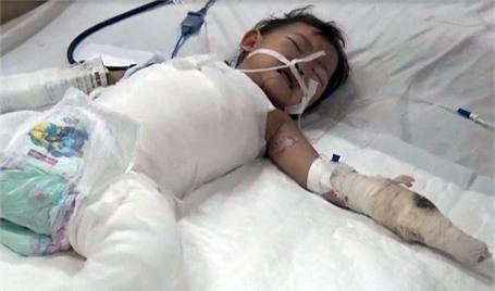 Toàn thân bé Huyền Trang được băng bó để vùng tổn thương không nhiễm khuẩn, lở loét