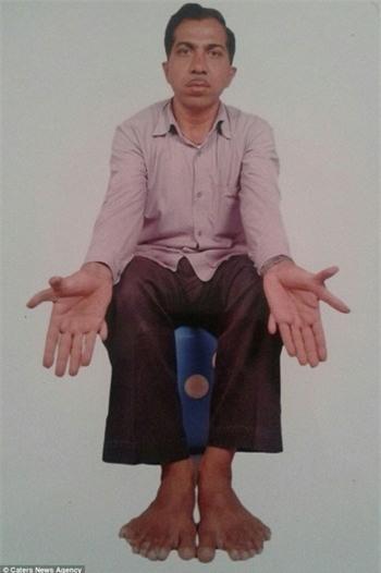 Chuyện kỳ lạ về người đàn ông có 28 ngón tay, chân - ảnh 1