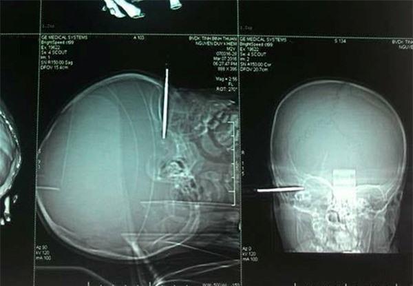Bé 14 tháng tuổi bị tuốc nơ vít đâm thủng thái dương - Ảnh 1.