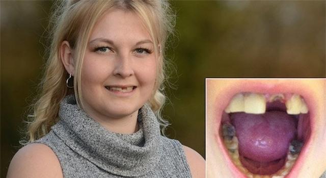 Thiếu nữ bị bệnh lạ hễ hắt hơi là rụng răng