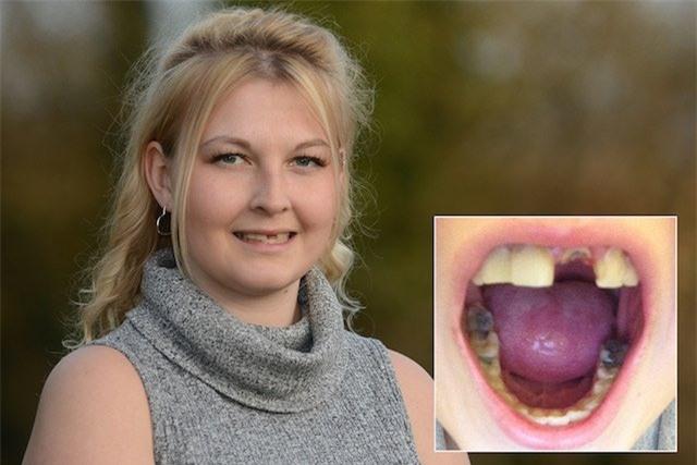 Linzi Grant bị căn bệnh lạ về răng.