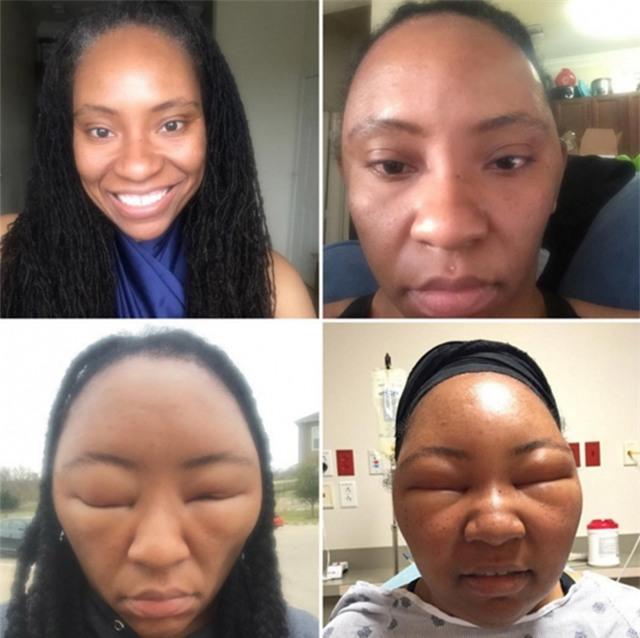 Mặt biến dạng không nhận ra vì sử dụng thuốc nhuộm tóc - Ảnh 1