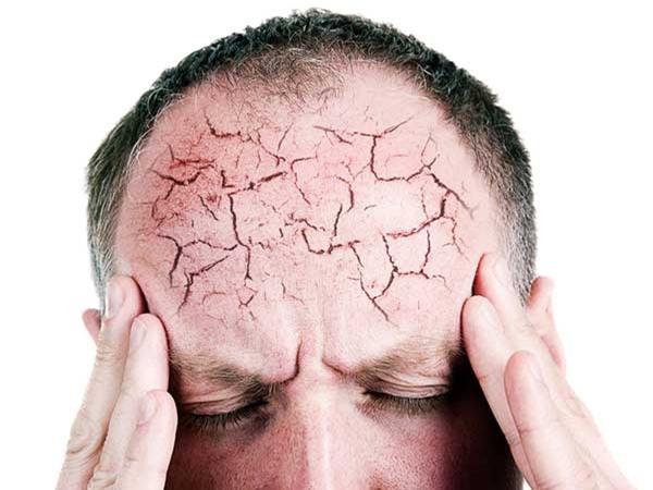 đau đầu dai dẳng