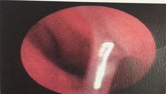 Bị đũa chọc vào mũi, bé trai 3 tuổi dính viêm màng não mủ