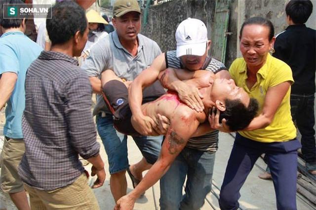 Lúc được giải cứu, vì sợ hãi và mệt cộng với vết thương ở cổ, anh Quảng ngất xỉu và được mọi người đưa đi cấp cứu.