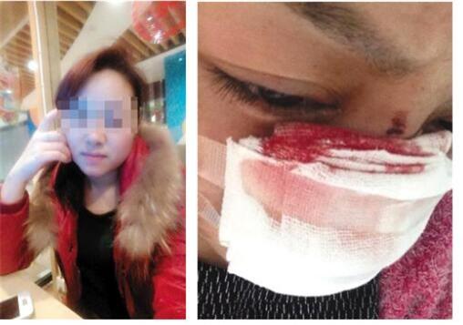 Cô Li tiết lộ mình bị chồng cắt mũi và bạo hành nhiều lần. Ảnh: Weibo