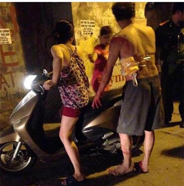 Hà Nội: Con rể cầm dao đâm bố vợ trọng thương trong đêm - Ảnh 1.