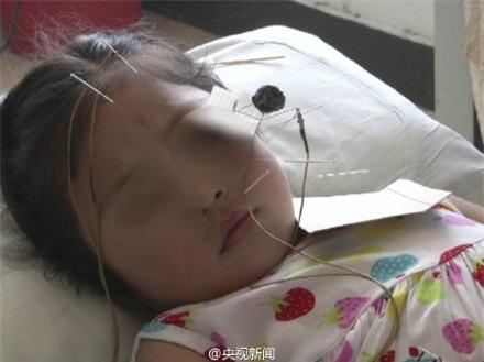 Cảnh báo: Trẻ bị méo mồm, liệt mặt do nằm phòng điều hòa liên tục - Ảnh 3.