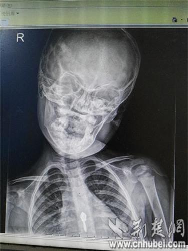 Ôm điện thoại và Ipad, bé 3 tuổi bị lệch cổ, thoái hóa đốt sống - Ảnh 1.