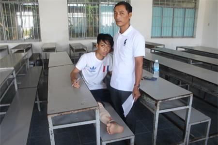 Chân bị gãy, đang bó bột trắng toát, đau nhức… nhưng thí sinh Nguyễn Thành Chung, dự thi THPT quốc gia tại điểm thi ĐH Nha Trang vẫn đến trường thi. Trong ảnh: Hai cha con em Chung trong phòng thi sáng 1/7. (Ảnh: Viết Hảo)