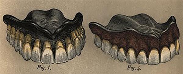 Răng tự phát nổ trong miệng? Câu chuyện có thật ở thế kỷ 19 - Ảnh 4.