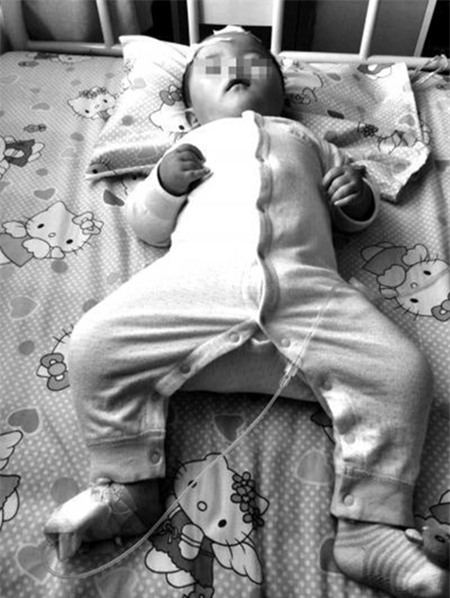 Phê thuốc, bố đánh con trai 2 tháng tuổi trọng thương