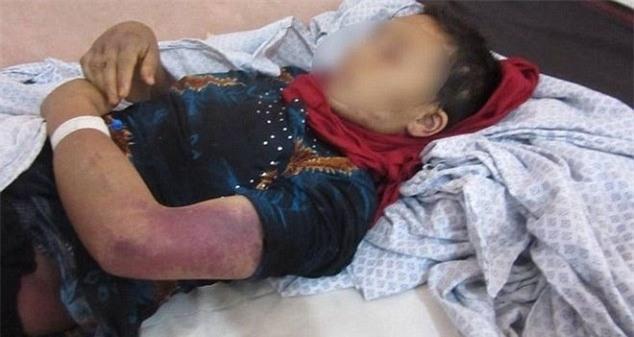 Vợ sảy thai vì bị chồng bạo hành, cắt 'vùng kín'