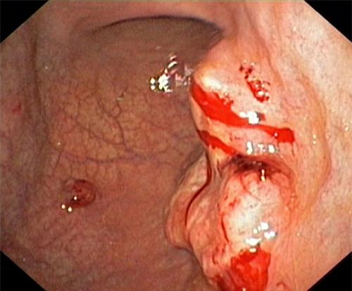 Bác sĩ khoa Tiêu hóa vạch mặt các thủ phạm gây ung thư dạ dày - Ảnh 1.
