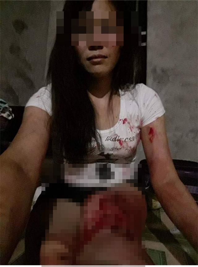 Bị chồng đánh rách thịt, người vợ tự lấy kim khâu vết thương - Ảnh 1.