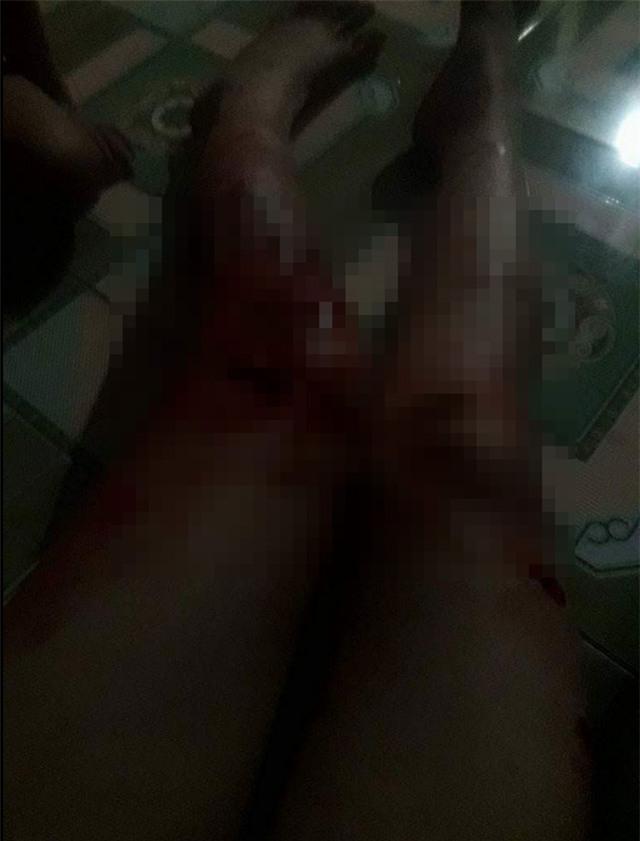 Bị chồng đánh rách thịt, người vợ tự lấy kim khâu vết thương - Ảnh 2.