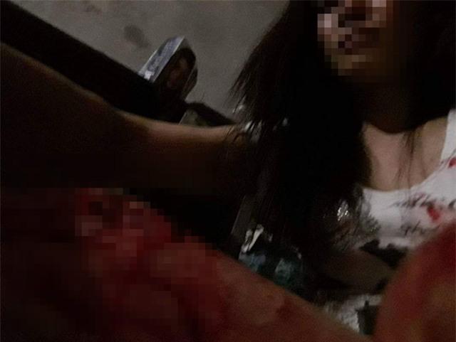 Bị chồng đánh rách thịt, người vợ tự lấy kim khâu vết thương - Ảnh 3.