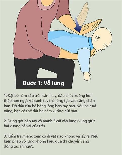 xử lý khi trẻ bị hóc nghẹn 2
