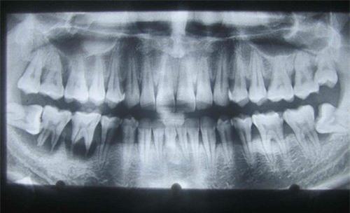 răng, răng khôn, răng số 8, nhổ răng khôn, nhổ răng số 8, răng mọc lệch, răng hàm mặt