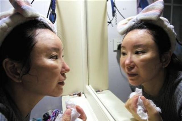 Ham đẹp như gái Hàn, nhiều phụ nữ Trung Quốc ôm hận thiên thu vì phẫu thuật thẩm mỹ hỏng - Ảnh 10.