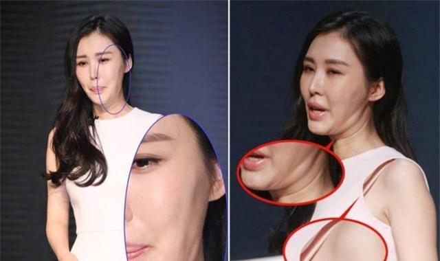 Ham đẹp như gái Hàn, nhiều phụ nữ Trung Quốc ôm hận thiên thu vì phẫu thuật thẩm mỹ hỏng - Ảnh 16.