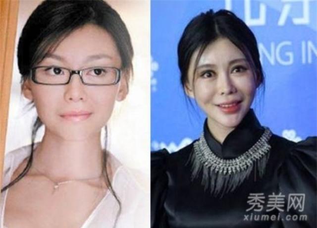Ham đẹp như gái Hàn, nhiều phụ nữ Trung Quốc ôm hận thiên thu vì phẫu thuật thẩm mỹ hỏng - Ảnh 17.