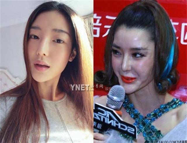 Ham đẹp như gái Hàn, nhiều phụ nữ Trung Quốc ôm hận thiên thu vì phẫu thuật thẩm mỹ hỏng - Ảnh 18.