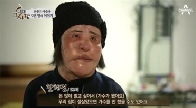 Ham đẹp như gái Hàn, nhiều phụ nữ Trung Quốc ôm hận thiên thu vì phẫu thuật thẩm mỹ hỏng - Ảnh 21.