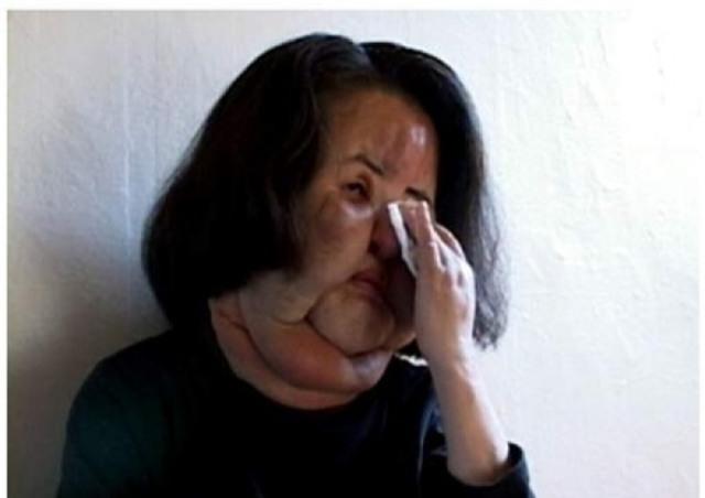 Ham đẹp như gái Hàn, nhiều phụ nữ Trung Quốc ôm hận thiên thu vì phẫu thuật thẩm mỹ hỏng - Ảnh 22.