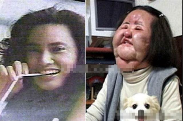 Ham đẹp như gái Hàn, nhiều phụ nữ Trung Quốc ôm hận thiên thu vì phẫu thuật thẩm mỹ hỏng - Ảnh 23.