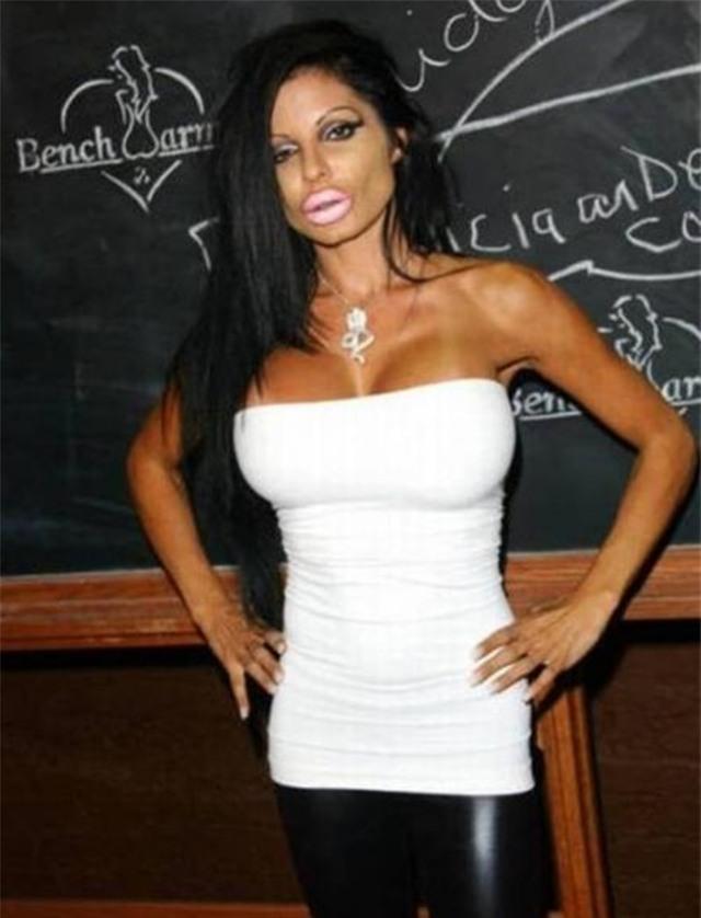 Ham đẹp như gái Hàn, nhiều phụ nữ Trung Quốc ôm hận thiên thu vì phẫu thuật thẩm mỹ hỏng - Ảnh 30.