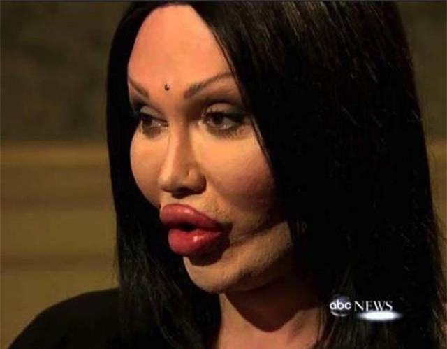 Ham đẹp như gái Hàn, nhiều phụ nữ Trung Quốc ôm hận thiên thu vì phẫu thuật thẩm mỹ hỏng - Ảnh 34.